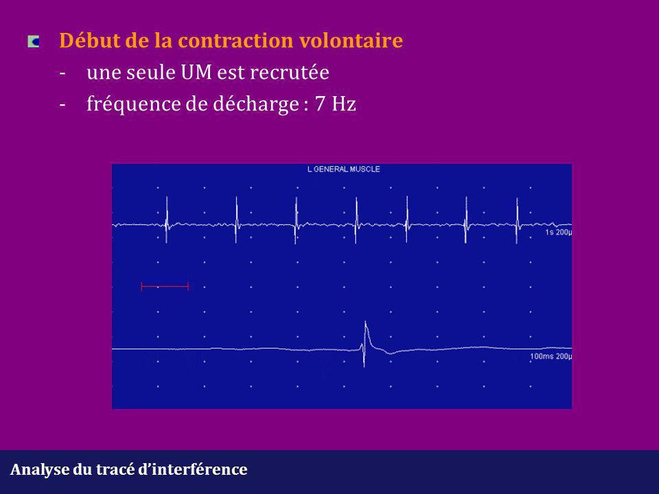 Analyse du tracé d'interférence Début de la contraction volontaire -une seule UM est recrutée - fréquence de décharge : 7 Hz