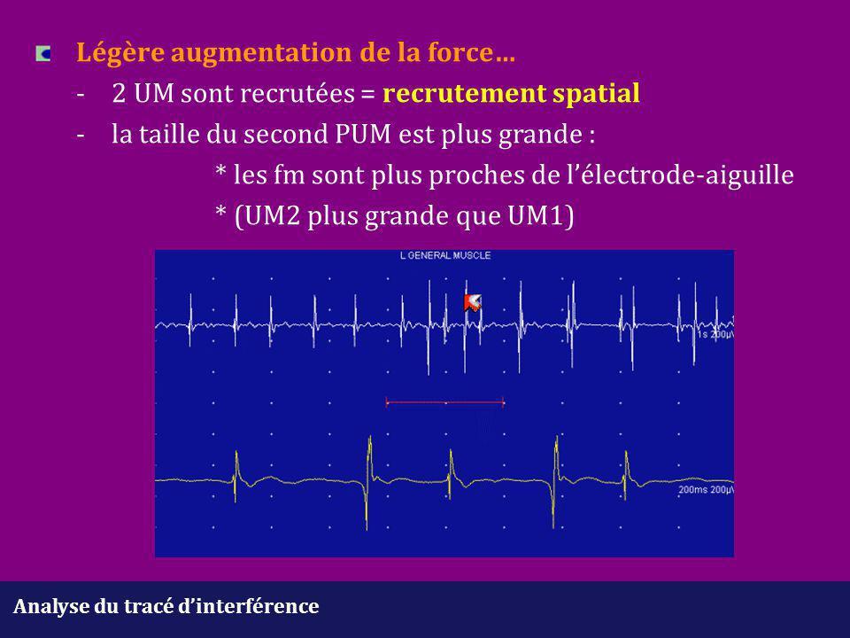 Analyse du tracé d'interférence Légère augmentation de la force… -2 UM sont recrutées = recrutement spatial - la taille du second PUM est plus grande