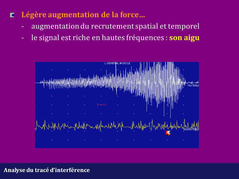 Analyse du tracé d'interférence Légère augmentation de la force… -augmentation du recrutement spatial et temporel - le signal est riche en hautes fréq