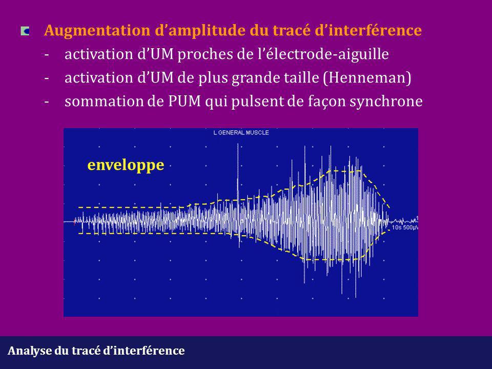 Analyse du tracé d'interférence Augmentation d'amplitude du tracé d'interférence -activation d'UM proches de l'électrode-aiguille - activation d'UM de