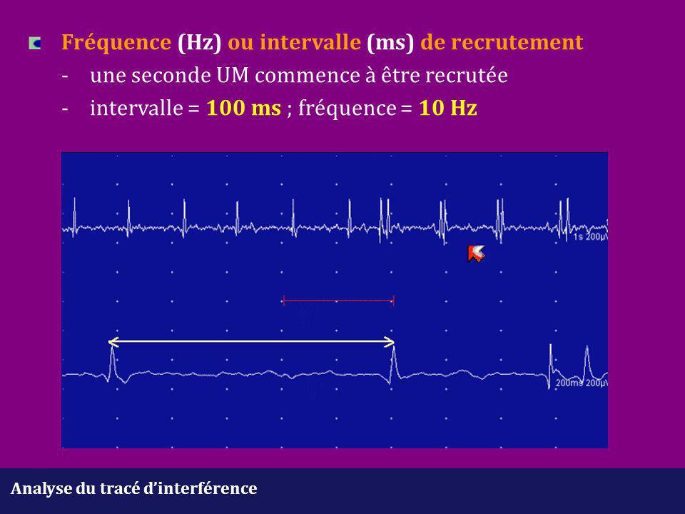 Analyse du tracé d'interférence Fréquence (Hz) ou intervalle (ms) de recrutement -une seconde UM commence à être recrutée - intervalle = 100 ms ; fréq