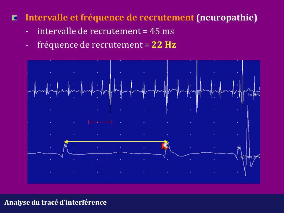 Analyse du tracé d'interférence Intervalle et fréquence de recrutement (neuropathie) -intervalle de recrutement = 45 ms -fréquence de recrutement = 22