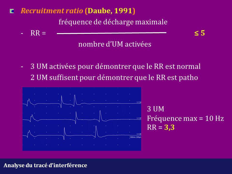 Analyse du tracé d'interférence Recruitment ratio (Daube, 1991) fréquence de décharge maximale -RR =≤ 5 nombre d'UM activées -3 UM activées pour démon