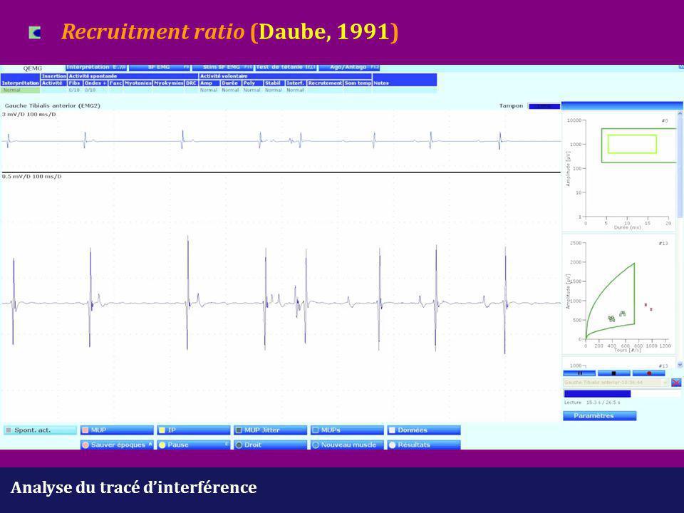 Analyse du tracé d'interférence Recruitment ratio (Daube, 1991)