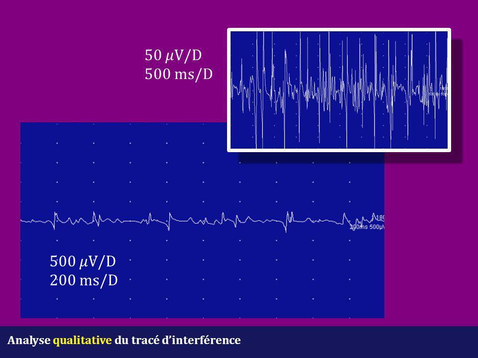 Analyse qualitative du tracé d'interférence 500 V/D 200 ms/D 50 V/D 500 ms/D