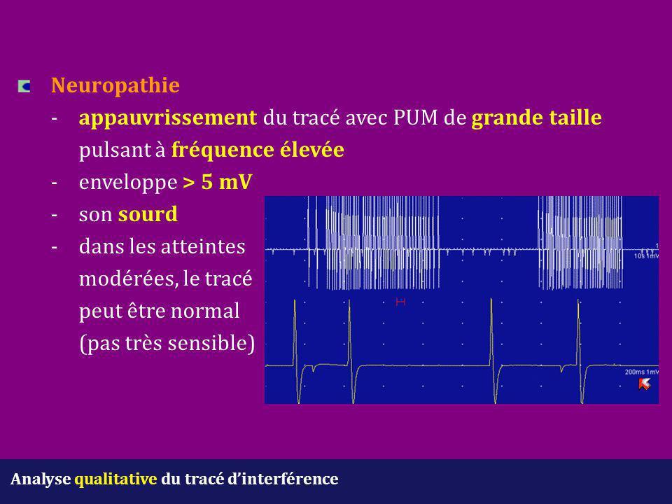 Analyse qualitative du tracé d'interférence Neuropathie - appauvrissement du tracé avec PUM de grande taille pulsant à fréquence élevée - enveloppe >