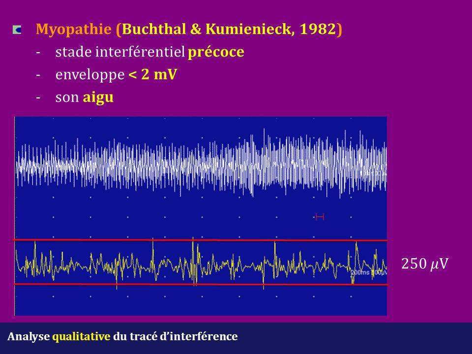 Analyse qualitative du tracé d'interférence Myopathie (Buchthal & Kumienieck, 1982) - stade interférentiel précoce -enveloppe < 2 mV -son aigu 250 V