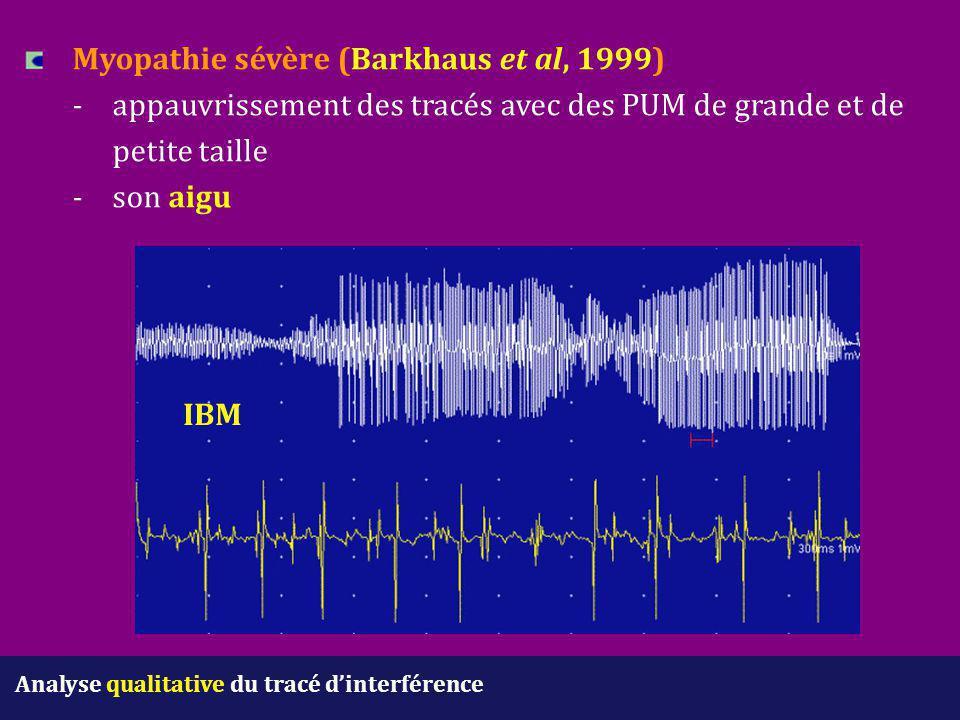 Analyse qualitative du tracé d'interférence Myopathie sévère (Barkhaus et al, 1999) - appauvrissement des tracés avec des PUM de grande et de petite t