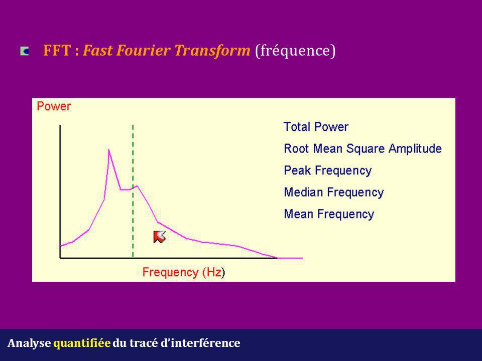 Analyse quantifiée du tracé d'interférence FFT : Fast Fourier Transform (fréquence)