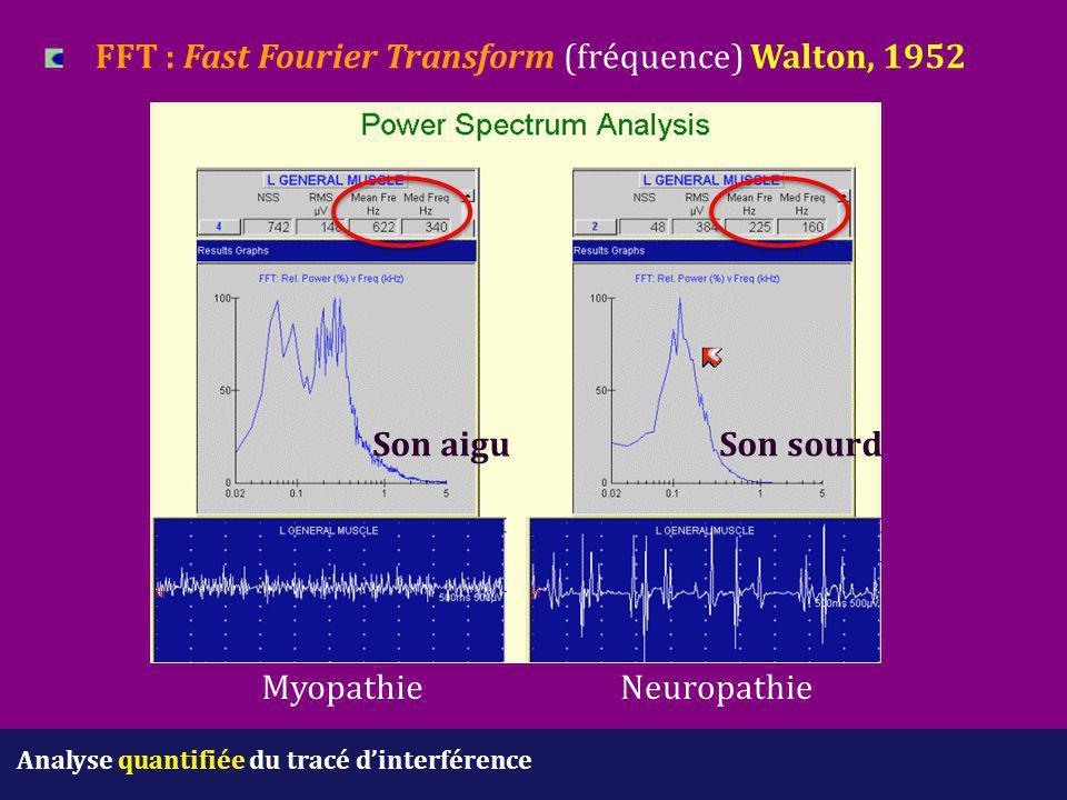 Analyse quantifiée du tracé d'interférence FFT : Fast Fourier Transform (fréquence) Walton, 1952 MyopathieNeuropathie Son sourdSon aigu