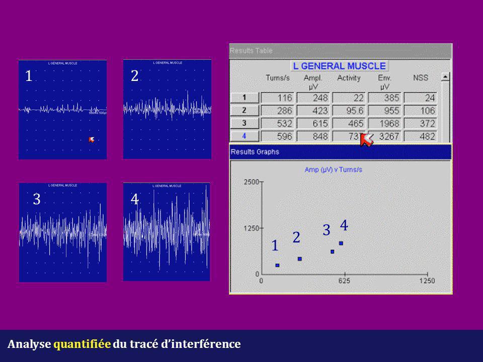 Analyse quantifiée du tracé d'interférence 12 34 1 2 3 4