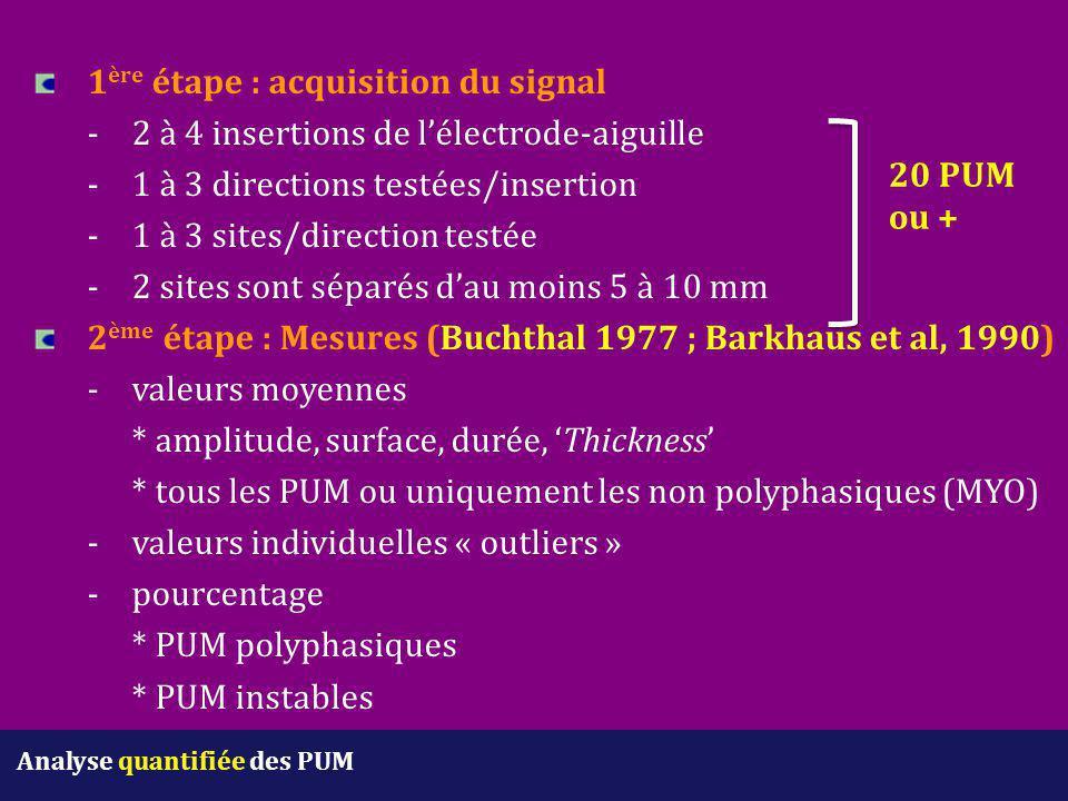 1 ère étape : acquisition du signal -2 à 4 insertions de l'électrode-aiguille -1 à 3 directions testées/insertion -1 à 3 sites/direction testée -2 sit
