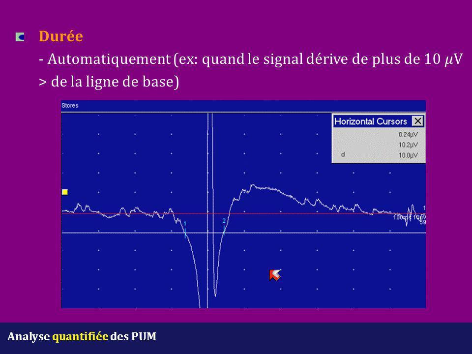 Durée - Automatiquement (ex: quand le signal dérive de plus de 10 V > de la ligne de base) Analyse quantifiée des PUM