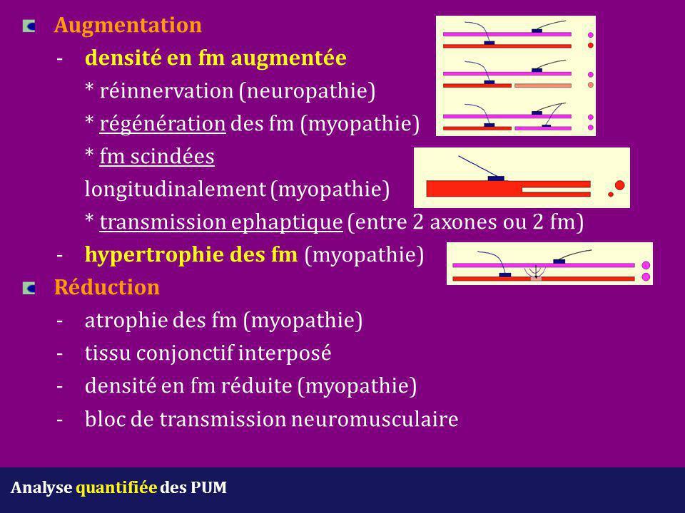 Augmentation -densité en fm augmentée * réinnervation (neuropathie) * régénération des fm (myopathie) * fm scindées longitudinalement (myopathie) * tr