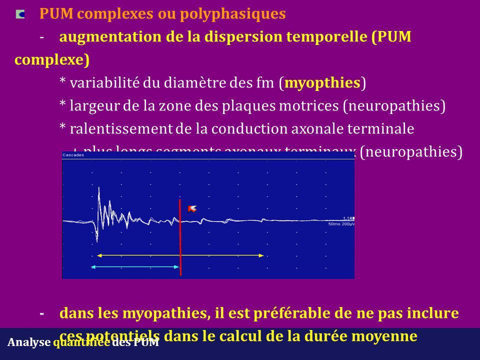 PUM complexes ou polyphasiques -augmentation de la dispersion temporelle (PUM complexe) * variabilité du diamètre des fm (myopthies) * largeur de la z