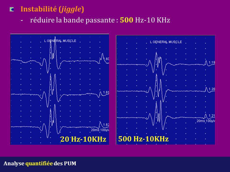 Instabilité (jiggle) -réduire la bande passante : 500 Hz-10 KHz 20 Hz-10KHz 500 Hz-10KHz Analyse quantifiée des PUM