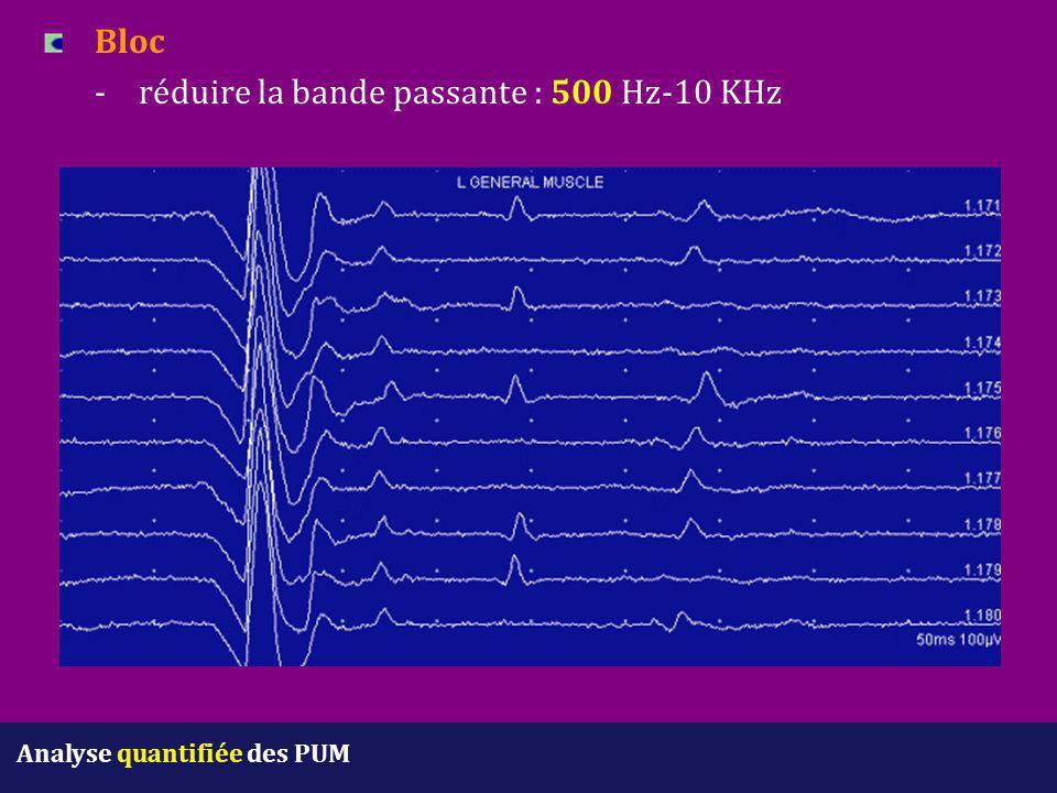 Bloc -réduire la bande passante : 500 Hz-10 KHz