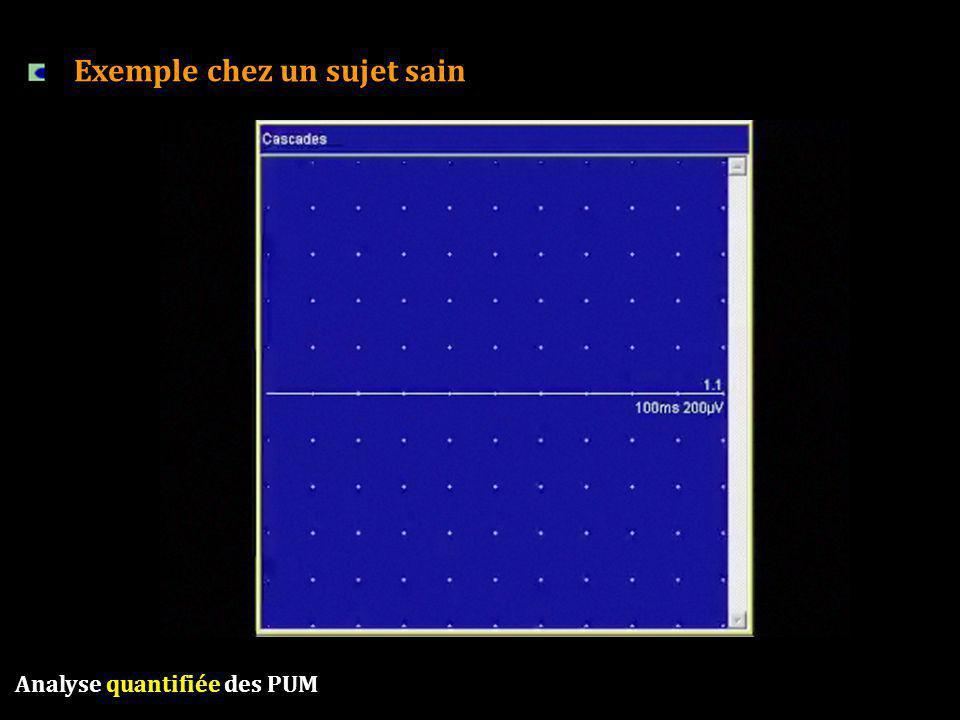 Analyse quantifiée des PUM Exemple chez un sujet sain