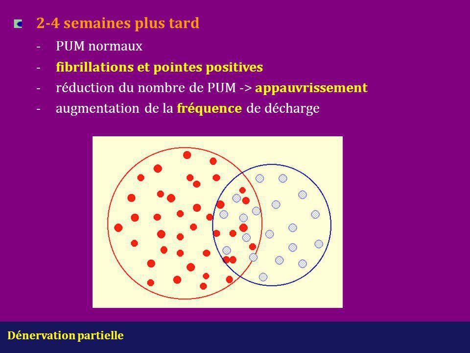 Dénervation partielle 2-4 semaines plus tard -PUM normaux -fibrillations et pointes positives -réduction du nombre de PUM -> appauvrissement -augmenta