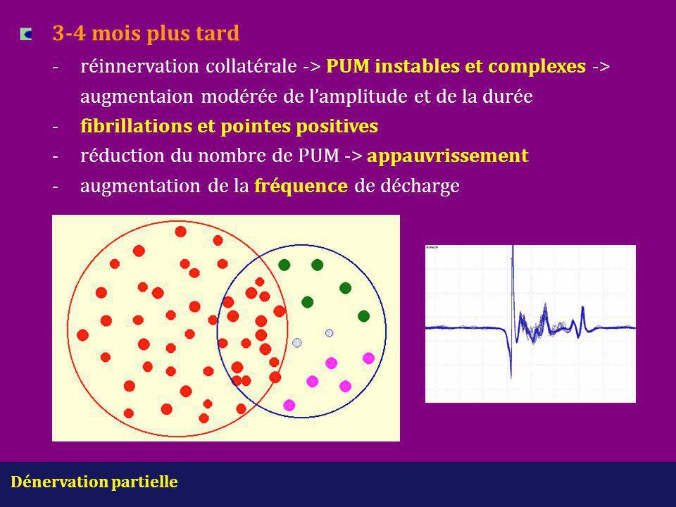 Dénervation partielle 3-4 mois plus tard -réinnervation collatérale -> PUM instables et complexes -> augmentaion modérée de l'amplitude et de la durée