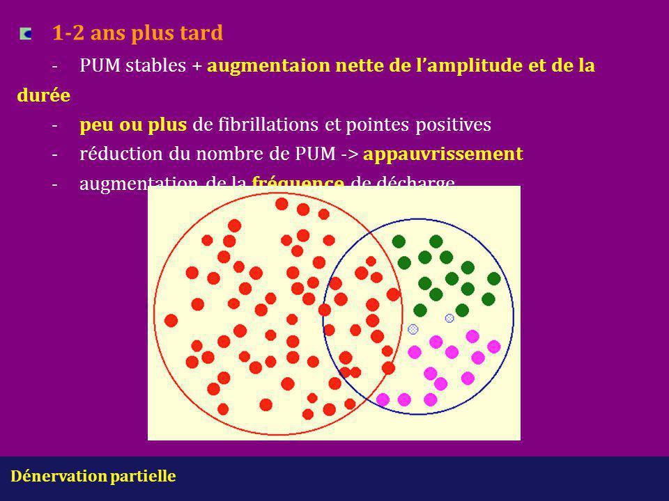 Dénervation partielle 1-2 ans plus tard -PUM stables + augmentaion nette de l'amplitude et de la durée -peu ou plus de fibrillations et pointes positi