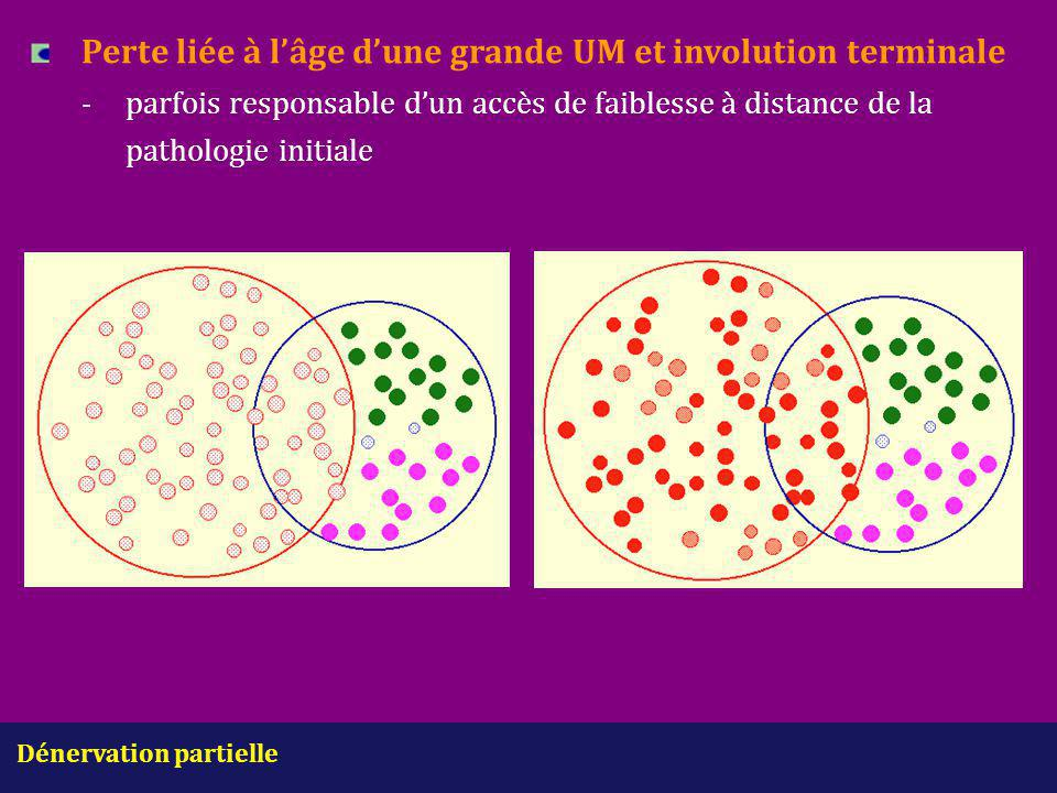 Dénervation partielle Perte liée à l'âge d'une grande UM et involution terminale -parfois responsable d'un accès de faiblesse à distance de la patholo