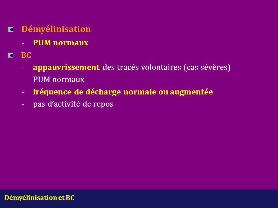 Démyélinisation et BC Démyélinisation -PUM normaux BC -appauvrissement des tracés volontaires (cas sévères) -PUM normaux -fréquence de décharge normal