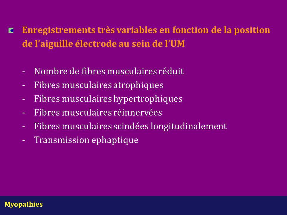 Myopathies Enregistrements très variables en fonction de la position de l'aiguille électrode au sein de l'UM - Nombre de fibres musculaires réduit -Fi