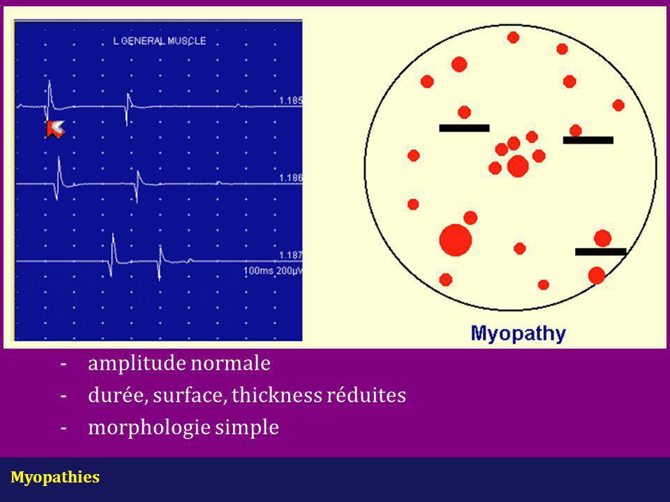 Myopathies - amplitude normale -durée, surface, thickness réduites -morphologie simple