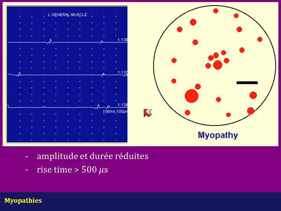Myopathies - amplitude et durée réduites -rise time > 500 s
