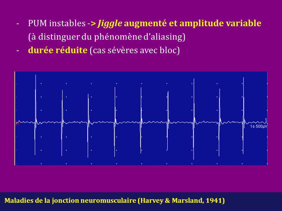 Maladies de la jonction neuromusculaire (Harvey & Marsland, 1941) - PUM instables -> Jiggle augmenté et amplitude variable (à distinguer du phénomène