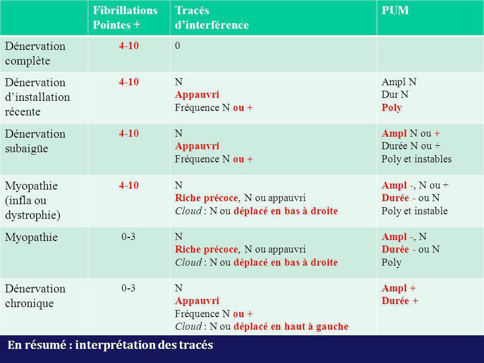 En résumé : interprétation des tracés Fibrillations Pointes + Tracés d'interférence PUM Dénervation complète 4-100 Dénervation d'installation récente