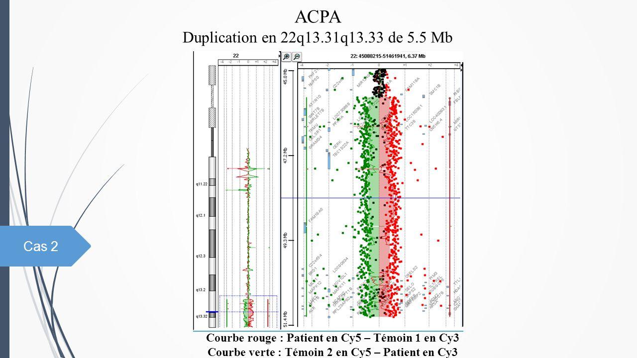 ACPA Duplication en 22q13.31q13.33 de 5.5 Mb Courbe rouge : Patient en Cy5 – Témoin 1 en Cy3 Courbe verte : Témoin 2 en Cy5 – Patient en Cy3 Cas 2