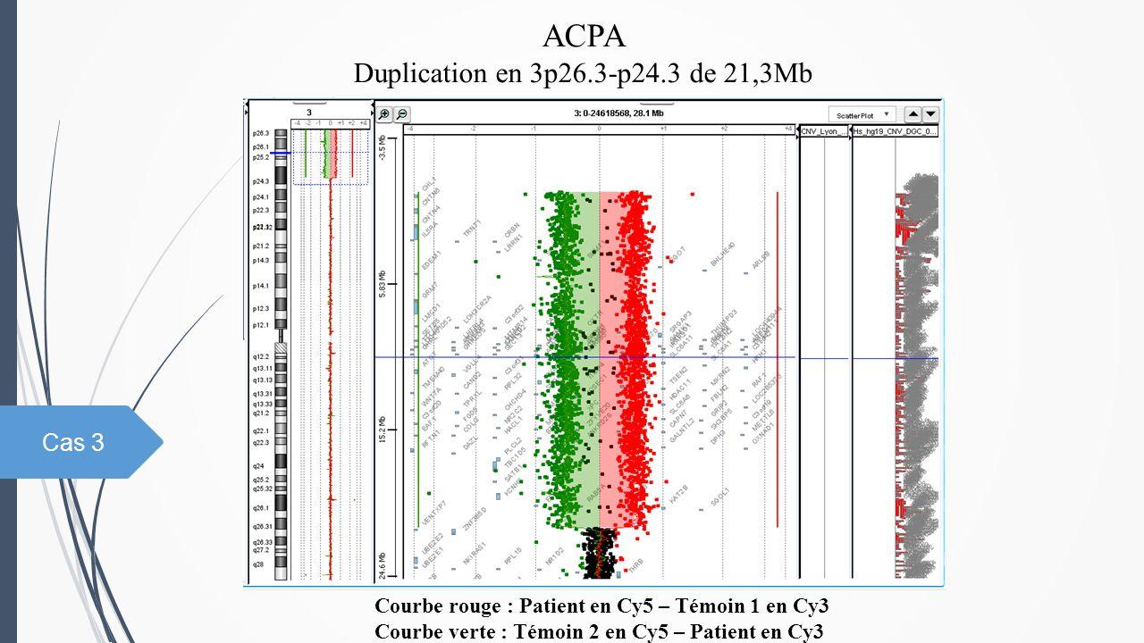 ACPA Duplication en 3p26.3-p24.3 de 21,3Mb Courbe rouge : Patient en Cy5 – Témoin 1 en Cy3 Courbe verte : Témoin 2 en Cy5 – Patient en Cy3 Cas 3