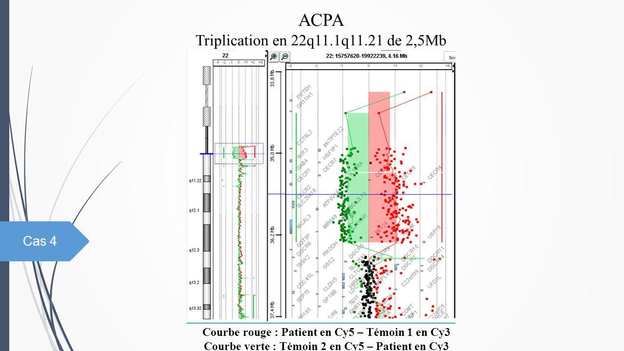 ACPA Triplication en 22q11.1q11.21 de 2,5Mb Courbe rouge : Patient en Cy5 – Témoin 1 en Cy3 Courbe verte : Témoin 2 en Cy5 – Patient en Cy3 Cas 4