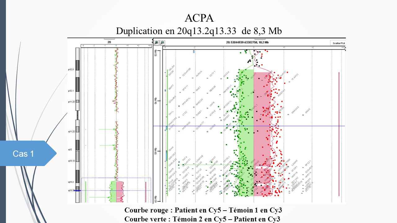 ACPA Duplication en 20q13.2q13.33 de 8,3 Mb Courbe rouge : Patient en Cy5 – Témoin 1 en Cy3 Courbe verte : Témoin 2 en Cy5 – Patient en Cy3 Cas 1