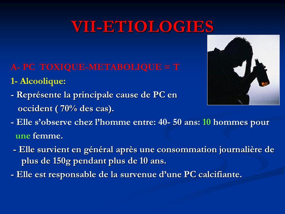 VII-ETIOLOGIES A- PC TOXIQUE-METABOLIQUE = T 1- Alcoolique: - Représente la principale cause de PC en occident ( 70% des cas). occident ( 70% des cas)