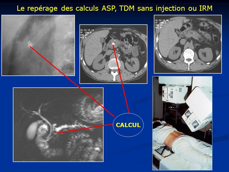Le repérage des calculs ASP, TDM sans injection ou IRM CALCUL