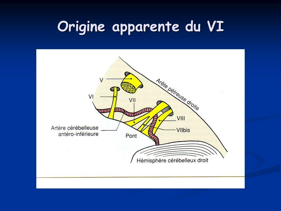 Origine apparente du VI