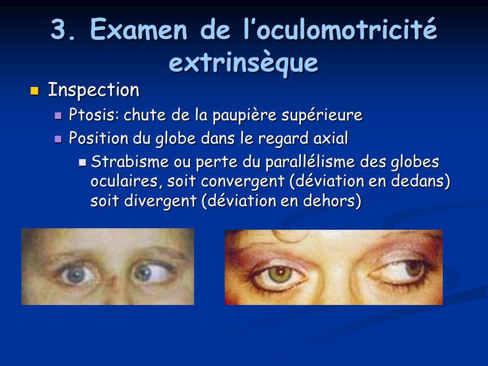 3. Examen de l'oculomotricité extrinsèque Inspection Inspection Ptosis: chute de la paupière supérieure Ptosis: chute de la paupière supérieure Positi