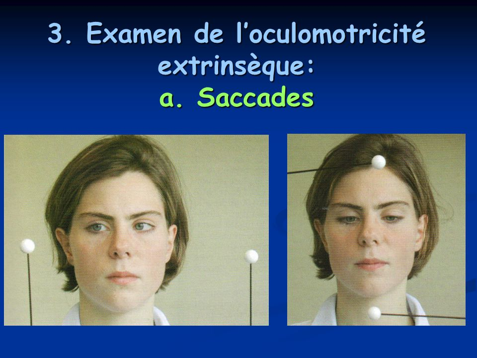 3. Examen de l'oculomotricité extrinsèque: a. Saccades
