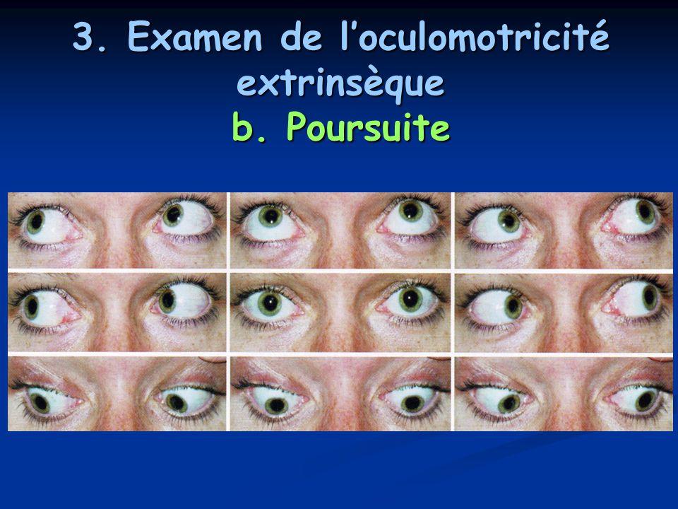 3. Examen de l'oculomotricité extrinsèque b. Poursuite