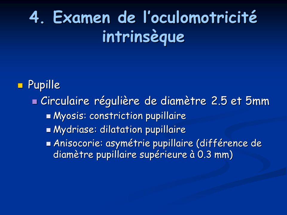 4. Examen de l'oculomotricité intrinsèque Pupille Pupille Circulaire régulière de diamètre 2.5 et 5mm Circulaire régulière de diamètre 2.5 et 5mm Myos