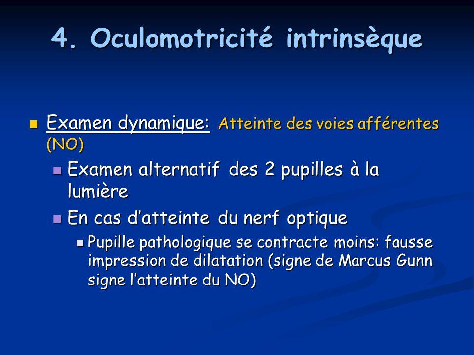 4. Oculomotricité intrinsèque Examen dynamique: Atteinte des voies afférentes (NO) Examen dynamique: Atteinte des voies afférentes (NO) Examen alterna