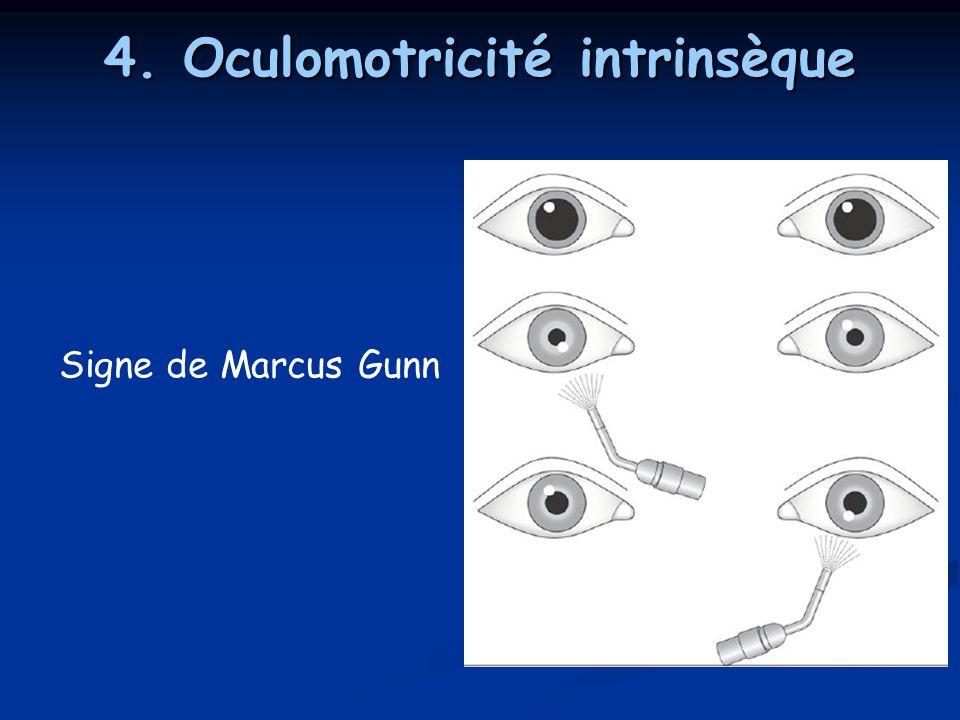 4. Oculomotricité intrinsèque Signe de Marcus Gunn