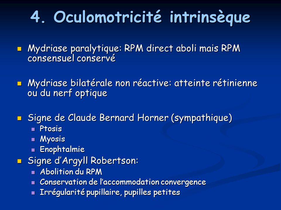 4. Oculomotricité intrinsèque Mydriase paralytique: RPM direct aboli mais RPM consensuel conservé Mydriase paralytique: RPM direct aboli mais RPM cons