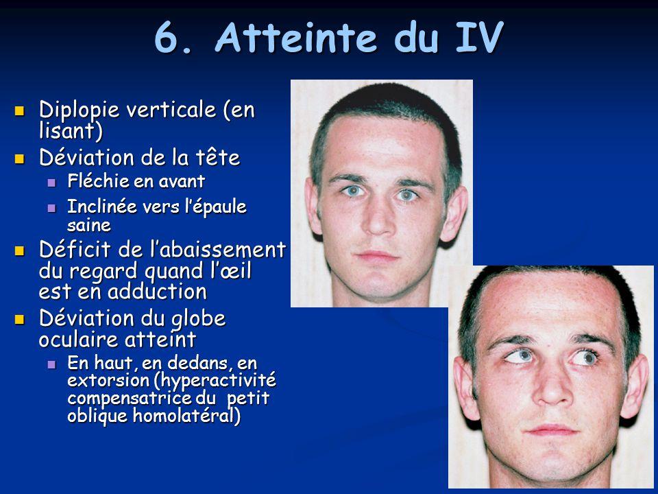 6. Atteinte du IV Diplopie verticale (en lisant) Diplopie verticale (en lisant) Déviation de la tête Déviation de la tête Fléchie en avant Fléchie en