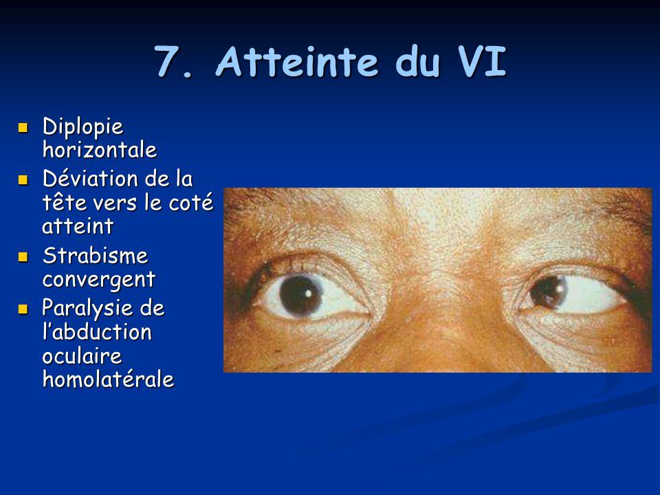 7. Atteinte du VI Diplopie horizontale Diplopie horizontale Déviation de la tête vers le coté atteint Déviation de la tête vers le coté atteint Strabi