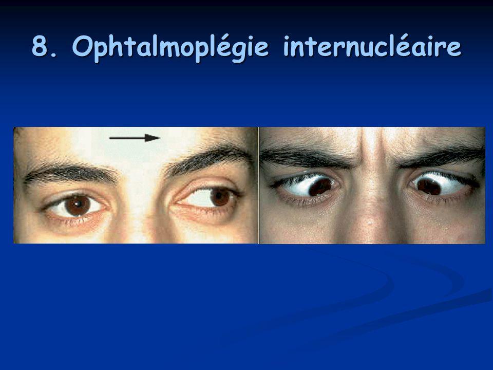 8. Ophtalmoplégie internucléaire