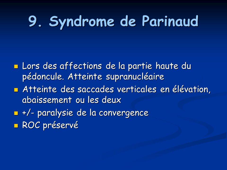 9. Syndrome de Parinaud Lors des affections de la partie haute du pédoncule. Atteinte supranucléaire Lors des affections de la partie haute du pédoncu